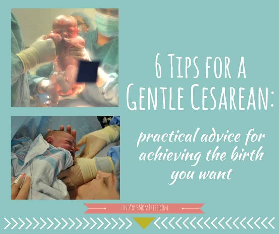 Planning a c-section? You can still have the birth of your dreams! Here's how.