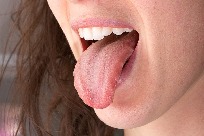 Metallic Taste In My Mouth During Pregnancy