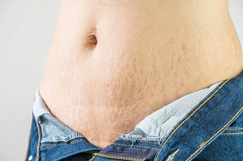 postpartum body Stretch marks