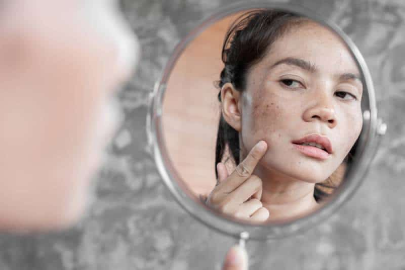 woman having skin problem checking her face in the mirror