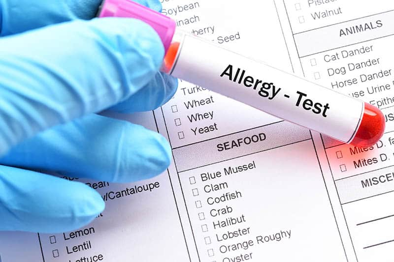 Food Allergies Test