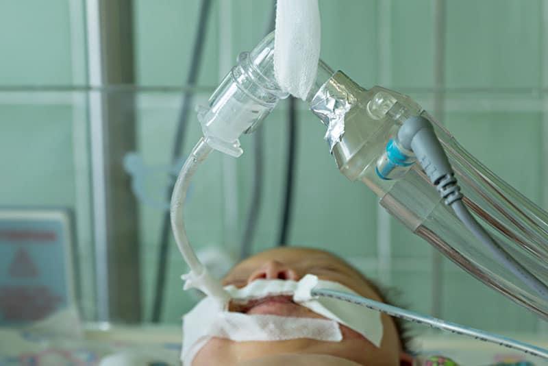 newborn baby on breathing machine