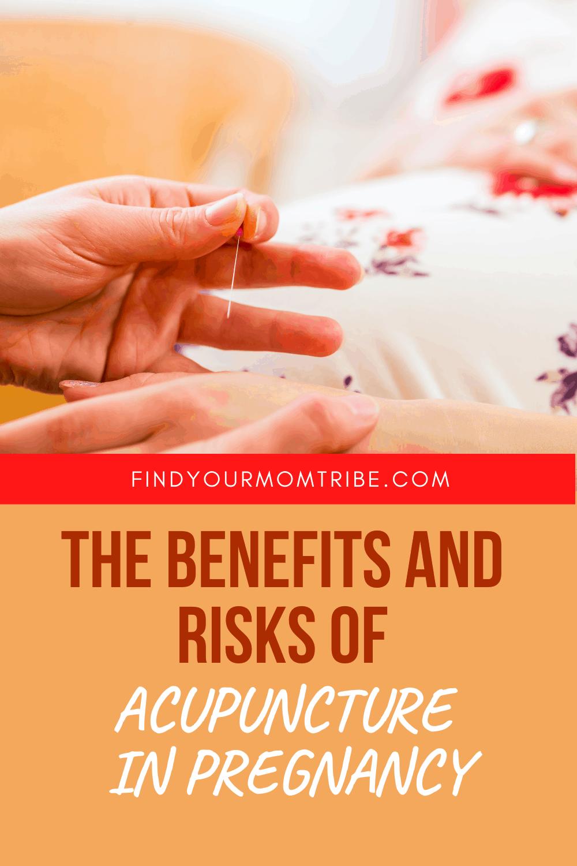 Pinterest acupuncture pregnancy