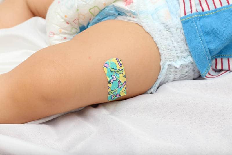 adhesive bandage on a baby boy leg