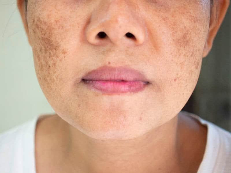 the dark spots on woman face
