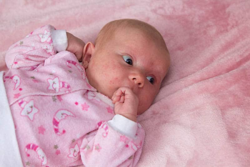 newborn girl with acne on her face lies on the crib